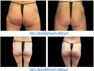 Female buttocks before and after emsculpt