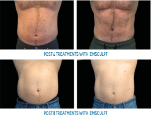 Male abs before and after emsculpt